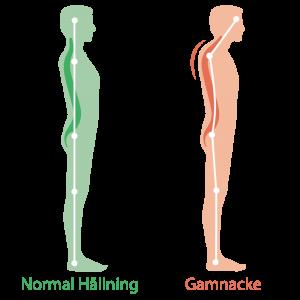 Normal Hållning och Gamnacke